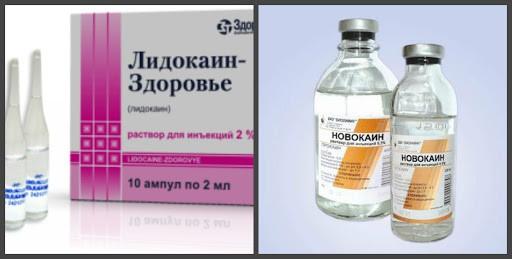 Лидокаин и Новокаин - что это такое и отличия